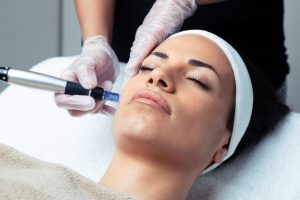 pearl of beauty formation microneedling