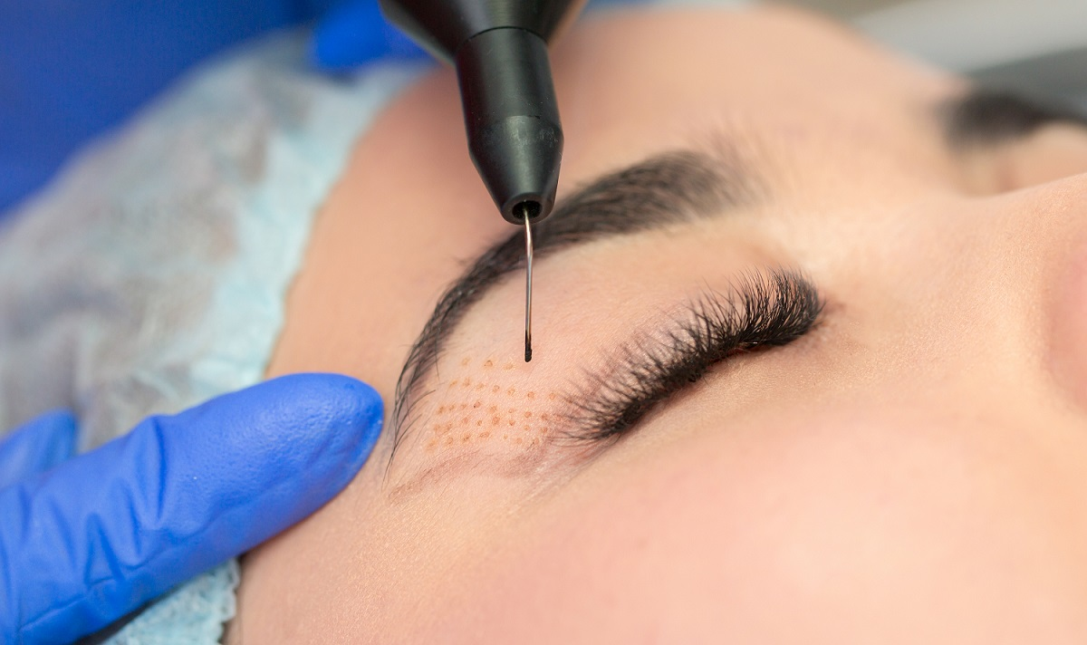 Pearl of beauty formation plasma lift